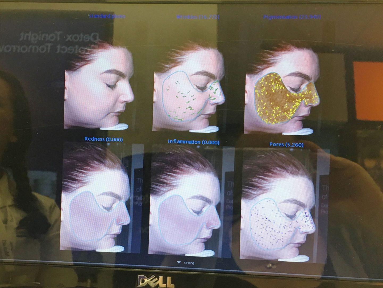 murad skin consultation