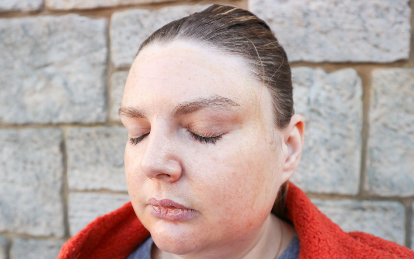 after chemical peel photo