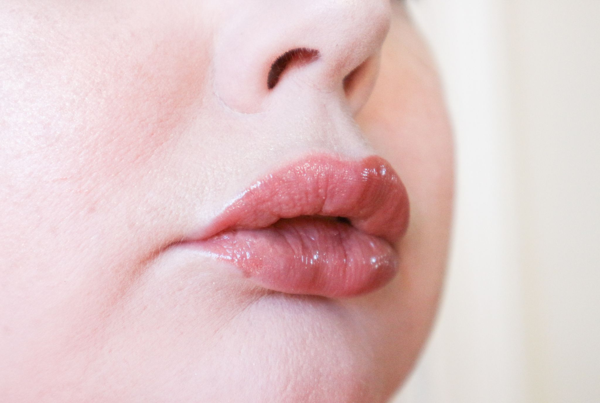 juvederm smile lip fillers image